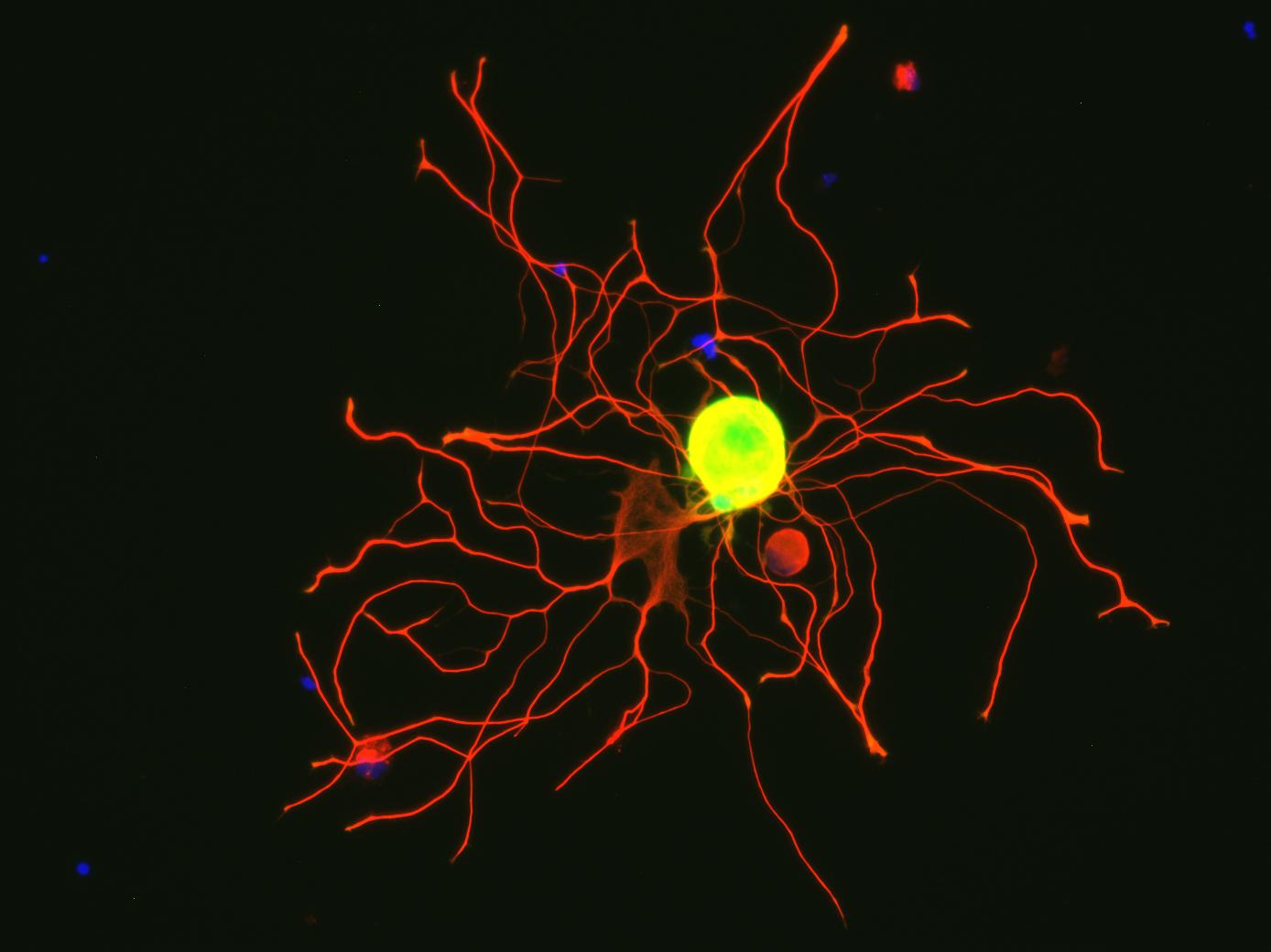 PÚBLICO - Quando se desliga este gene, os neurónios crescem