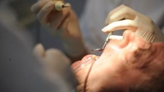 A percentagem de portugueses com dentes em falta e que nada têm a substituí-los tem aumentado, ainda que ligeiramente, em comparação com os dados de 2014 e de 2015