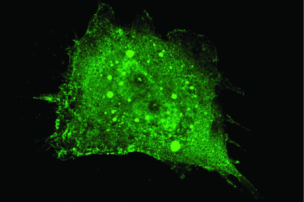 Doença de Parkinson deixa marcas numa proteína no sangue