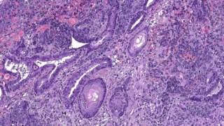 Corte de um teratoma, um tumor composto por vários tipos de tecidos, resultante das experiências portuguesas em ratinhos