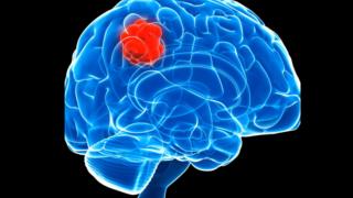 Glioblastoma é normalmente tratado com cirurgia para remoção de tumor, radioterapia e quimioterapia
