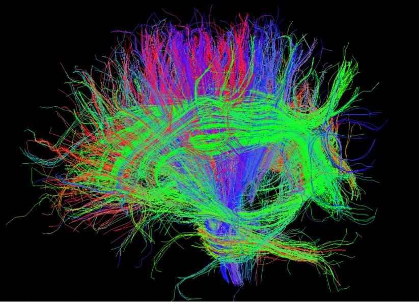 Esta experiência, defendeu Banino, indica que será possível lançar luz sobre alguns dos mistérios do cérebro sem ter de estudar cérebros biológicos