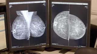 O estudo envolveu cancros no estadio inicial, antes de se espalhar pelos gânglios linfáticos