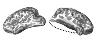 A figura acima mostra o hemisfério esquerdo e o direito da criança depois da cirurgia. A linha tracejada indica a parte do hemisfério direito retirada na lobotomia