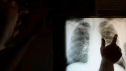 Dispositivos médicos matam em todo o mundo