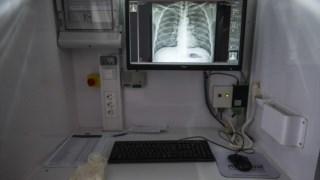O número de casos de tuberculose em Portugal tem diminuído, mas ainda é possível melhorar
