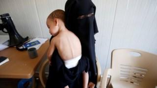 A viúva de um militante checheno do Daesh com o filho num campo de refugiados em Mossul