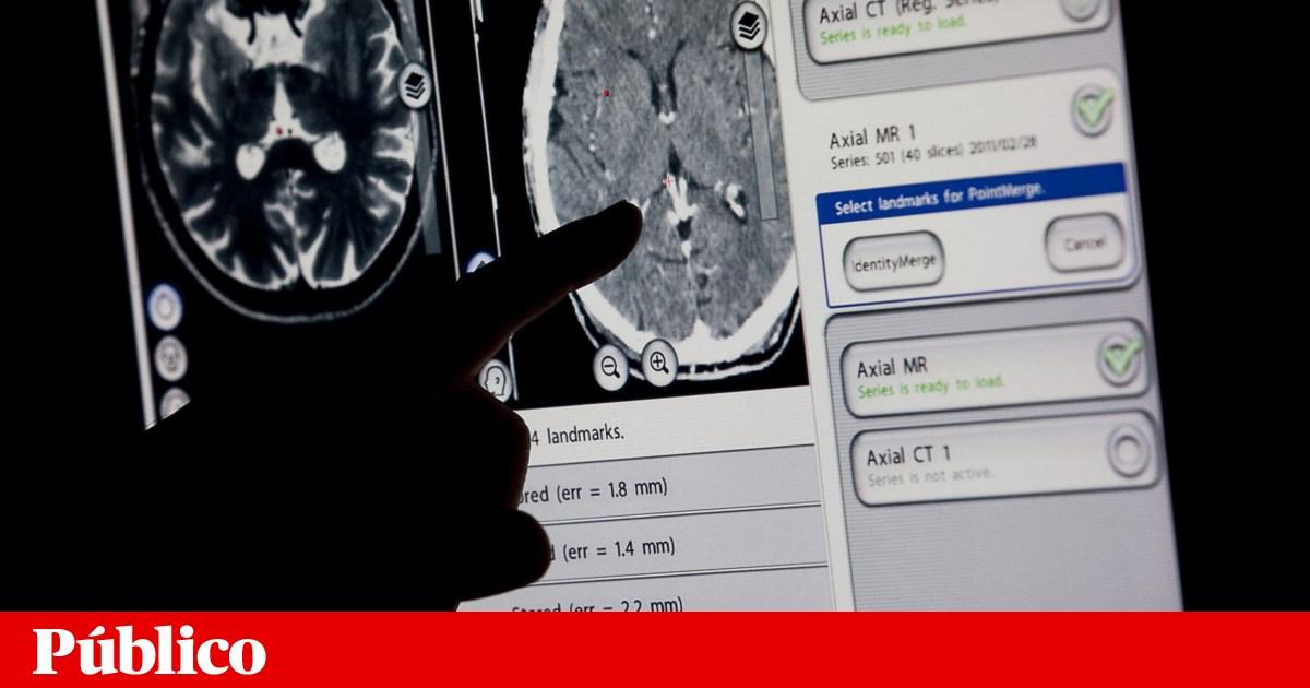 Estimulação eléctrica devolve movimentos a pacientes com Parkinson