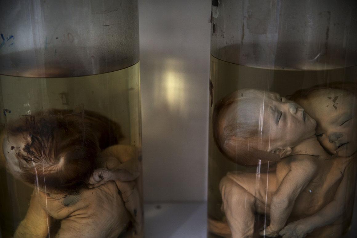 Os médicos do Hospital de Ho Chi Minh atribuem a alta incidência de deformidades na população ao uso do Agente Laranja durante a Guerra do Vietname