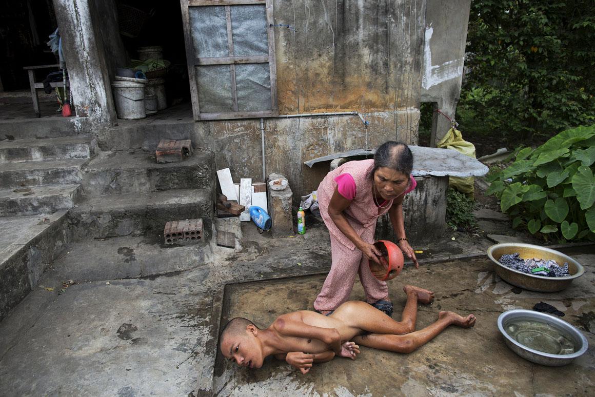 O pai de Doan Van Quy combateu na Guerra do Vietname e viveu em várias áreas contaminadas pelo Agente Laranja. Dois dos seus filhos nasceram com graves problemas de saúde